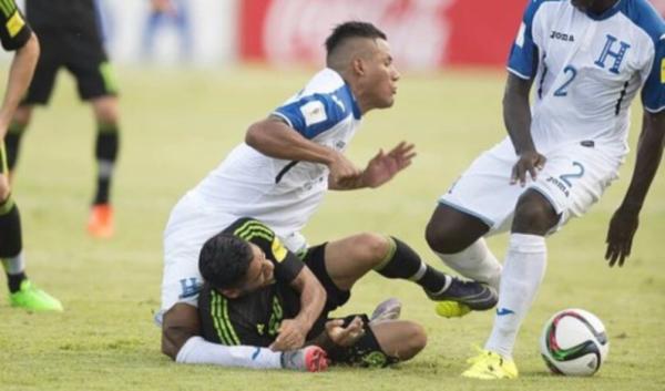 Luis Garrido Cedera Patah Kaki